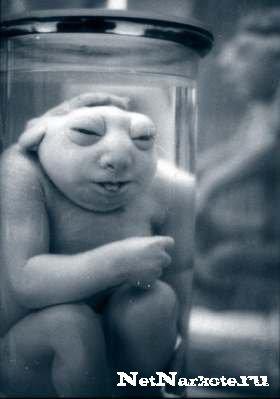 Последствий женского алкоголизма и пьяного зачатия (ФОТО)